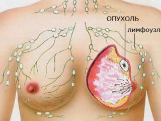 Рак груди -грозное заболевание, которое унесло много жизней.